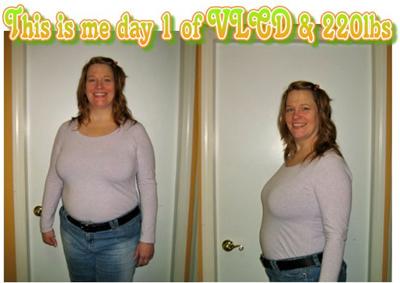 Lynn start of HCG diet