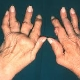 Health News - Curcumin Found Superior to Drugs for Rheumatoid Arthritis